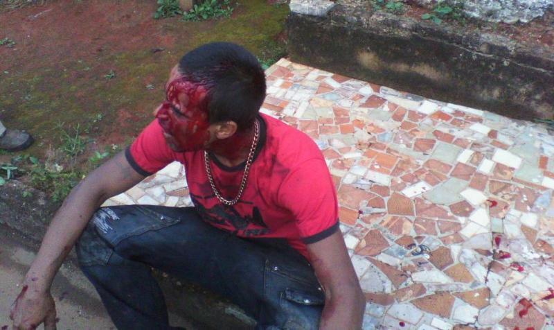 Três espancam homem em Lagoa Formosa usando barra de ferro