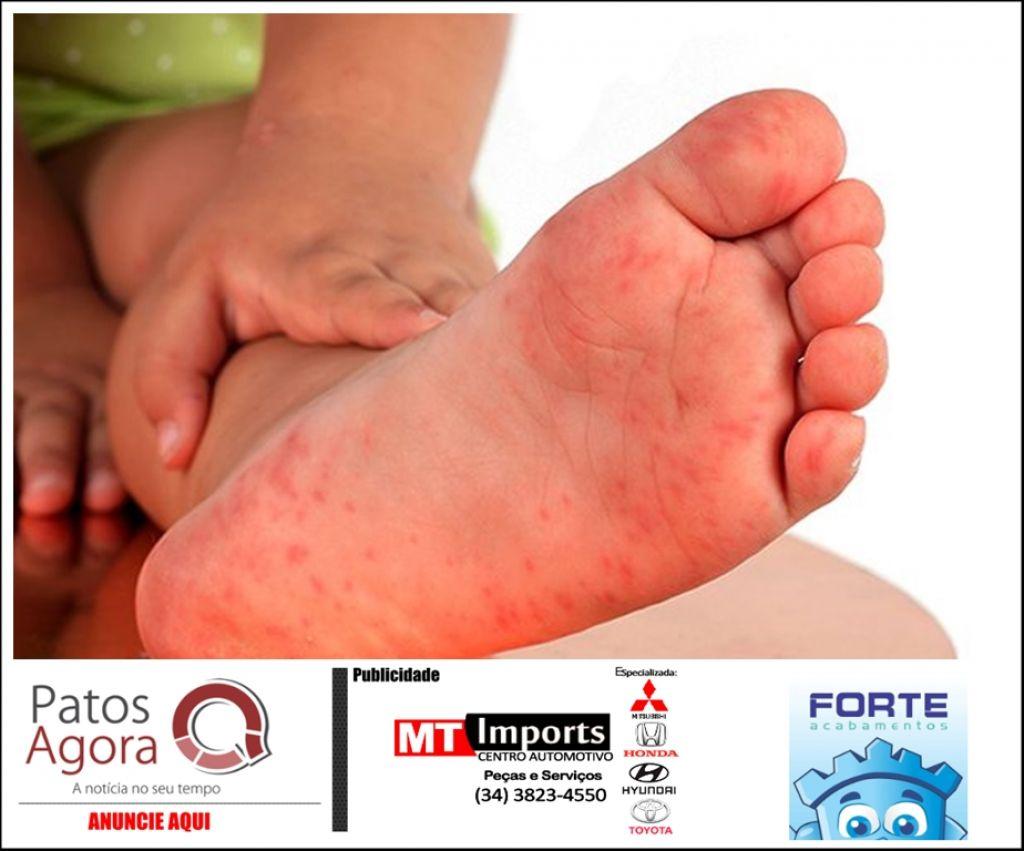 Creche de distrito de Rio Paranaíba tem atividades paralisadas após surto de vírus contagioso