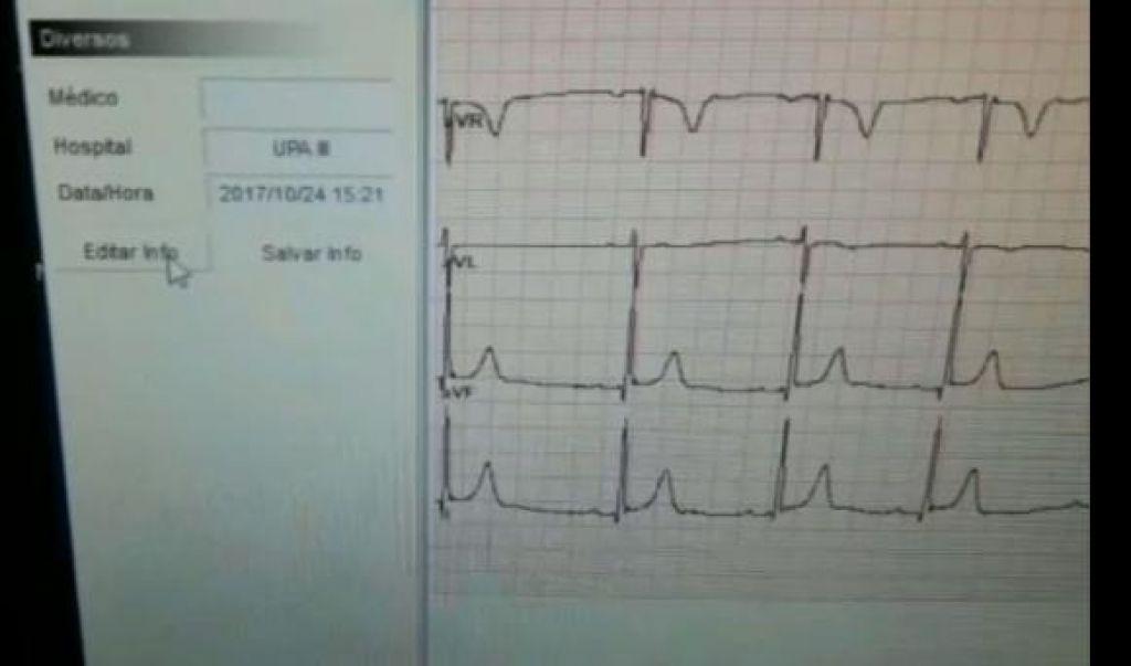 UPA recebe dois novos equipamentos de eletrocardiograma
